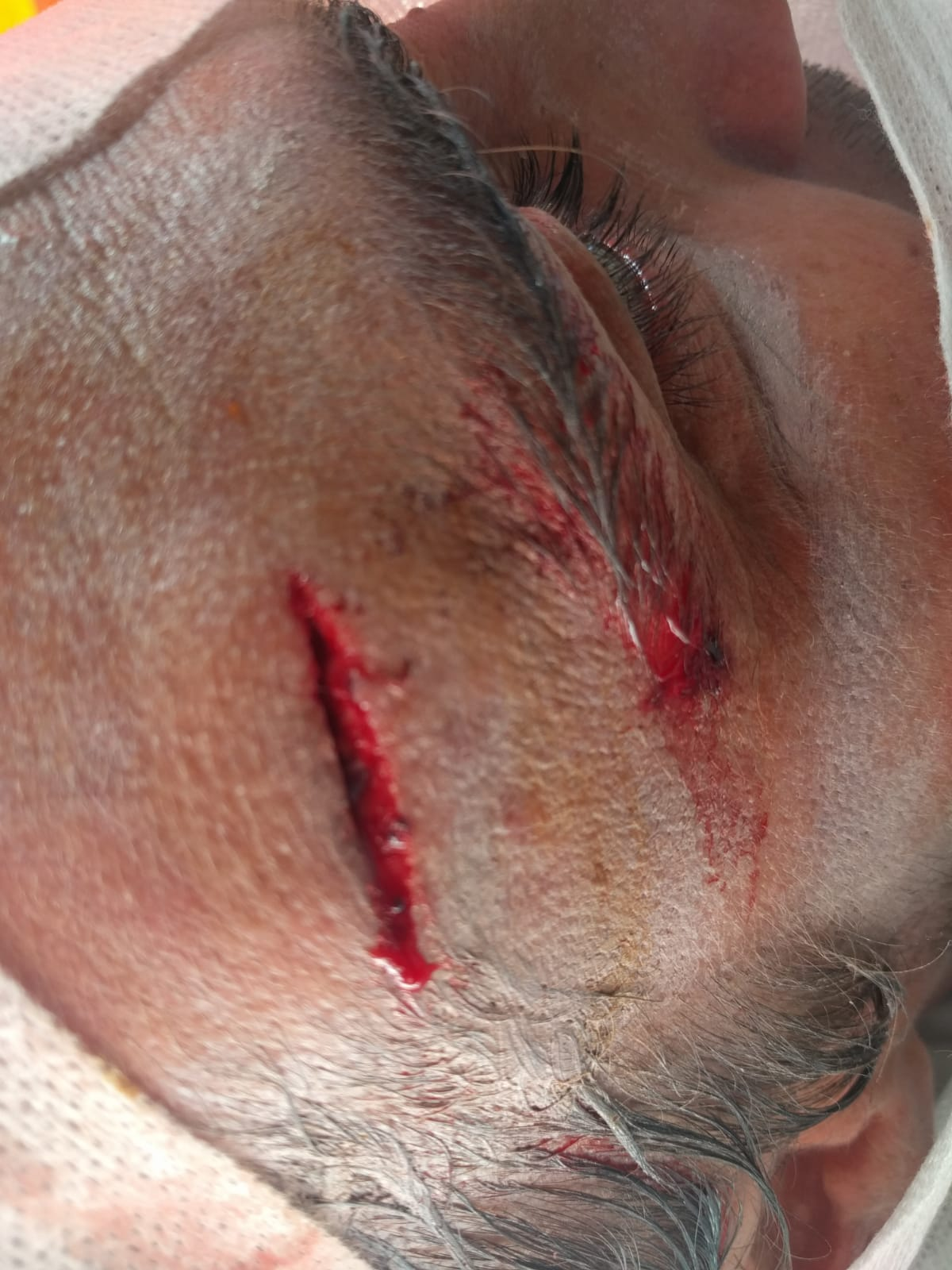 Surf guide Hosko took a fin to the head and this was the result