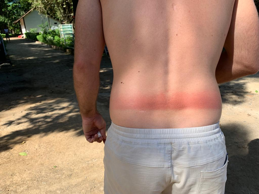 James Dent and why attention to details i important when applying sunscreen in the jungle.